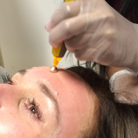 Treating the forehead